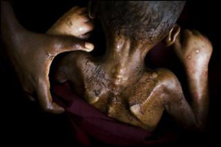 Een ondervoed kind in Somalië in 2011. Foto: Dominic Nahr / Magnum Photos / Hollandse Hoogte