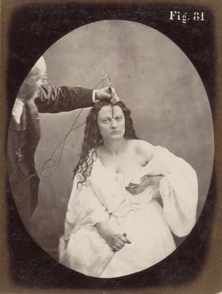 Portret van G.B.A. Duchenne en proefpersoon 'Lady Macbeth' tijdens elektrostimulatie, ca. 1860 - in of voor 1862. Foto: Guillaume Benjamin en Amand Duchenne / Rijksmuseum