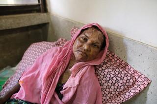 Een gewonde Rohingya vrouw ligt in het Government General Hospital in Cox's Bazar, Bangladesh, 13 september 2017. Ze is gevlucht van de militaire operaties in Rakhine. Foto: Zakir Hossain Chowdhury / Anadolu Agency / Getty Images