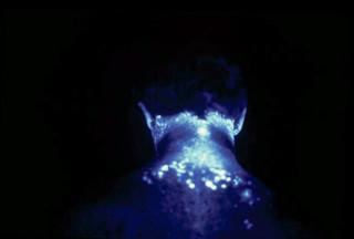 Figuur 4. Een voorbeeld van blootstelling aan pesticiden aan de achterkant van de nek en oren. Foto: Rutgers Coop. Ext