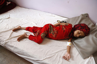 Een ondervoed meisje in een zorgcentrum in Sana'a, Jemen,16 oktober 2018. Foto: Mohammed Hamoud / Getty Images