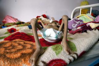 Een ondervoed kind in het Sabeen-ziekenhuis in Sana'a, Jemen, 6 oktober 2018. Foto: Mohammed Hamoud / Getty Images