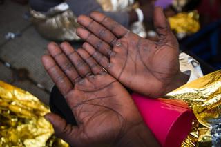Een van de migranten toont zijn toegetakelde handen. Hij moest werken als slaaf in Libië, 5 juni 2018. Foto: Erik Marquardt