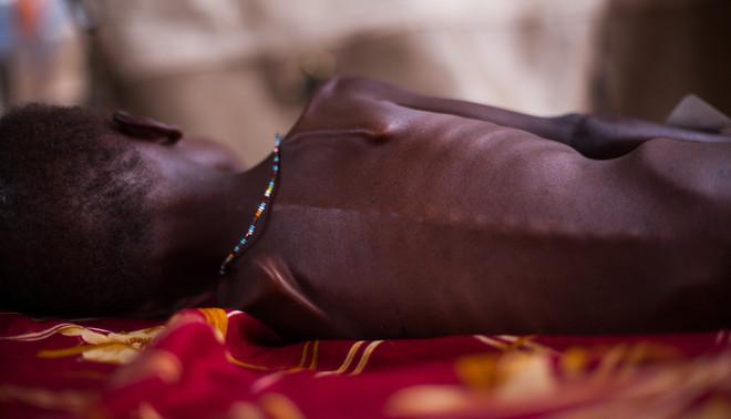 Een ondervoed kind in Zuid-Soedan in 2012. Foto: Trevor Snapp / Hollandse Hoogte