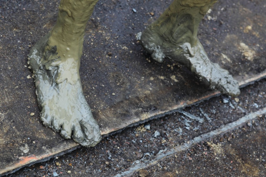 Doordat er stukken metaal en glas in de slijk rond de schepen liggen, krijgen werkers, die vaak op blote voeten werken, wonden die ontsteken doordat vloeistoffen als olie met modder zijn vermengd. (Chittagong in Bangladesh). Foto: Pierre Torset