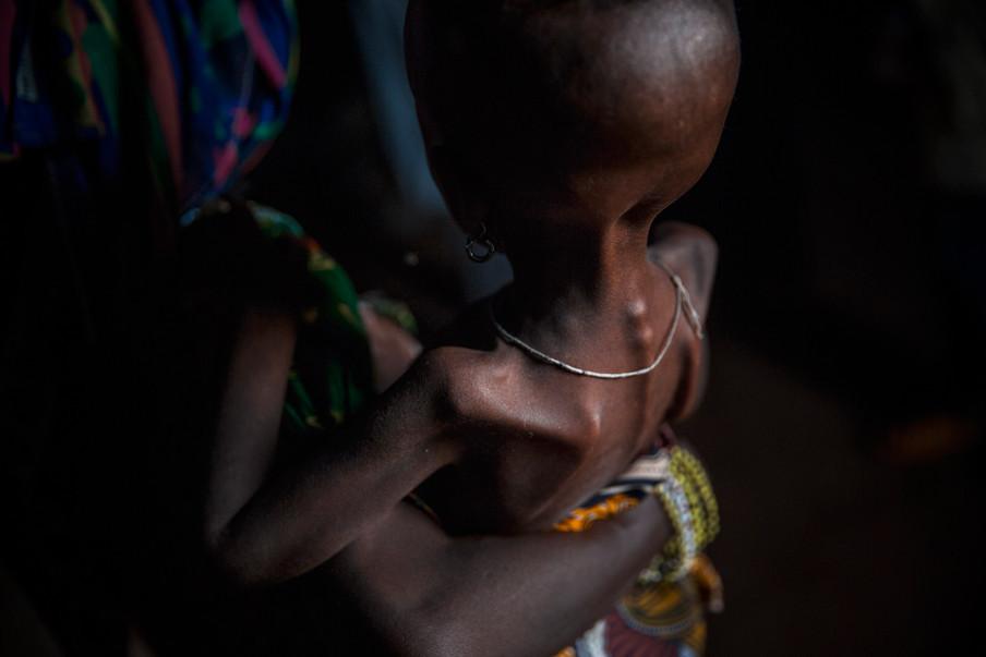 Een ondervoed kind in de Centraal-Afrikaanse Republiek in 2014. Foto: William Daniels