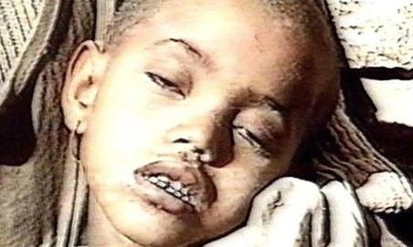 Het driejarige meisje Birhan Woldu, het gezicht van de hongersnood tijdens het Live Aid-benefietconcert in 1984.